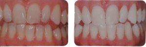 rabatt på tandblekning